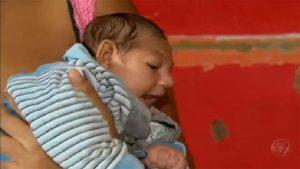 zika babies-1